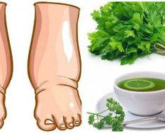 Este té casero curará tus piernas hinchadas en pocos días. Garantizado