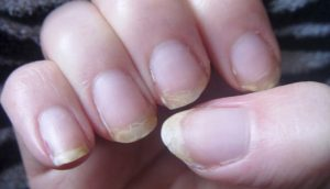¿Se te suelen romper las uñas y se te cae el pelo mucho? ¡Aquí tienes la solución!