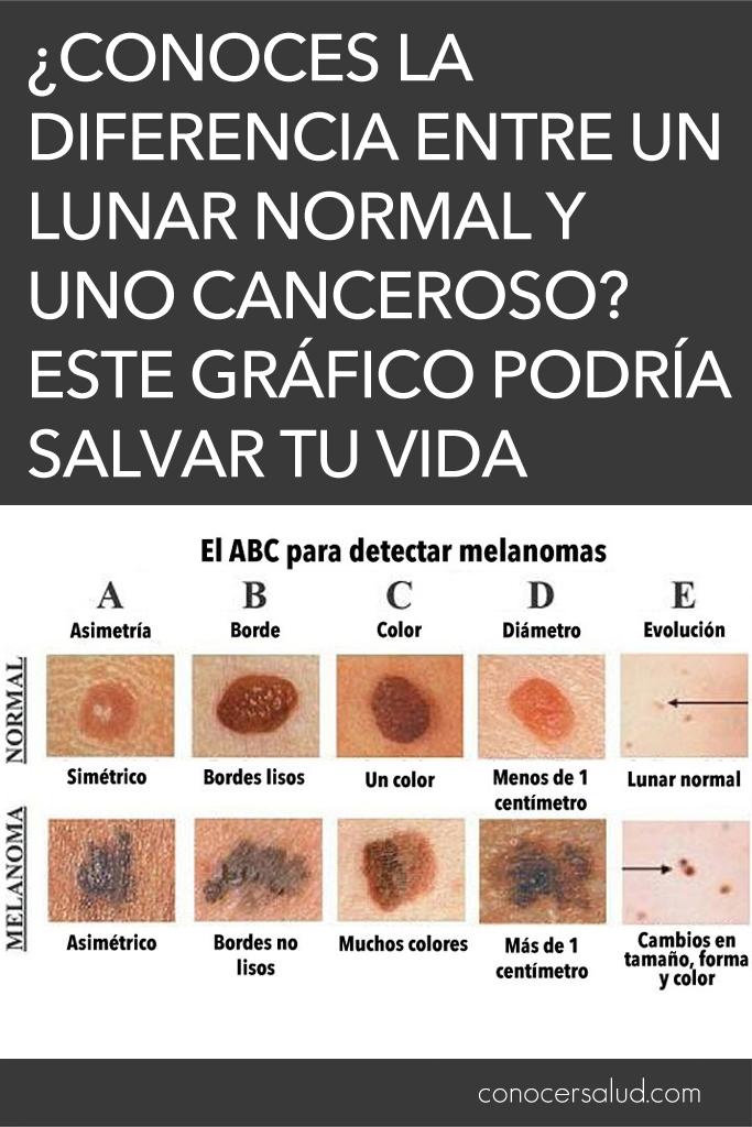 ¿Conoces la diferencia entre un lunar normal y uno CANCEROSO? Este gráfico podría salvar tu vida