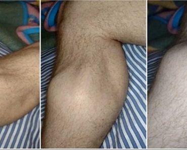 Esta es la razón de los calambres en las piernas durante la noche, y cómo evitarlos para siempre