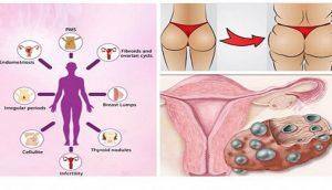 10 signos de que tu cuerpo tiene demasiado estrógeno y la forma de empezar a limpiarlo de inmediato
