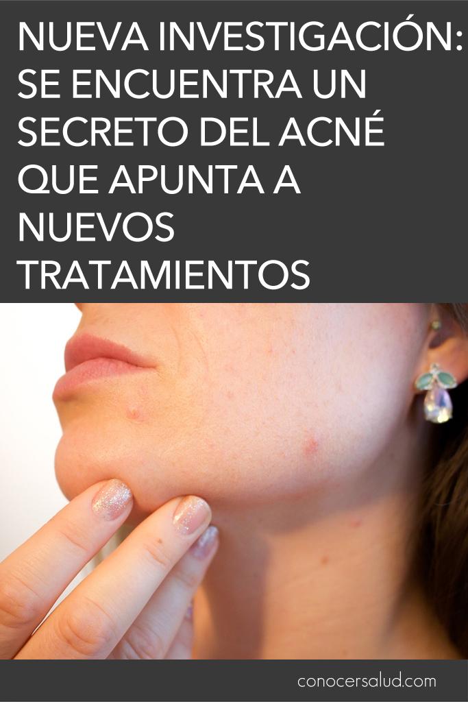 Nueva investigación: se encuentra un secreto del acné que apunta a nuevos tratamientos