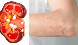 Si tus riñones están en peligro, tu cuerpo te dará estas 8 señales