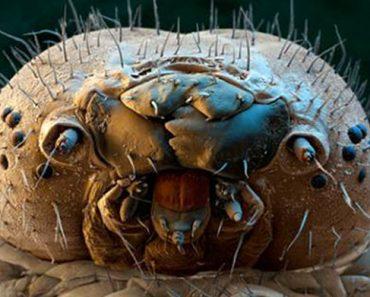 Estas horribles criaturas viven en tu cara, y no hay NADA que puedas hacer al respecto
