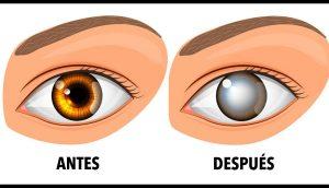 Este hábito cotidiano ha causado ceguera a varias personas, y te puede pasar a ti fácilmente