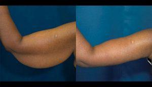 5 Ejercicios fáciles para eliminar la flacidez de los brazos rápidamente