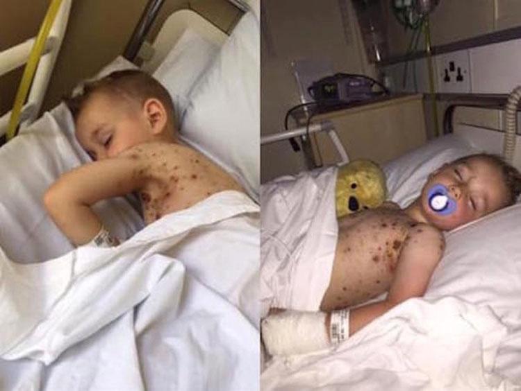 Su hijo llora con fiebre alta, entonces su madre se da cuenta del TERRIBLE error médico