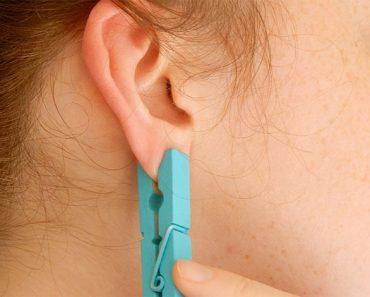 Pone una pinza de ropa en su oreja por un motivo BRILLANTE. ¿Lo has probado?