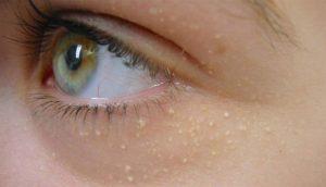 Estas manchas blancas alrededor del ojo pueden tener un aspecto inocente, pero significan algo serio