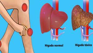 Señales de advertencia de que tu hígado está sobrecargado con toxinas