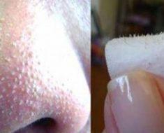 Truco: olvídate de los puntos negros y espinillas con este eficaz y sencillo remedio