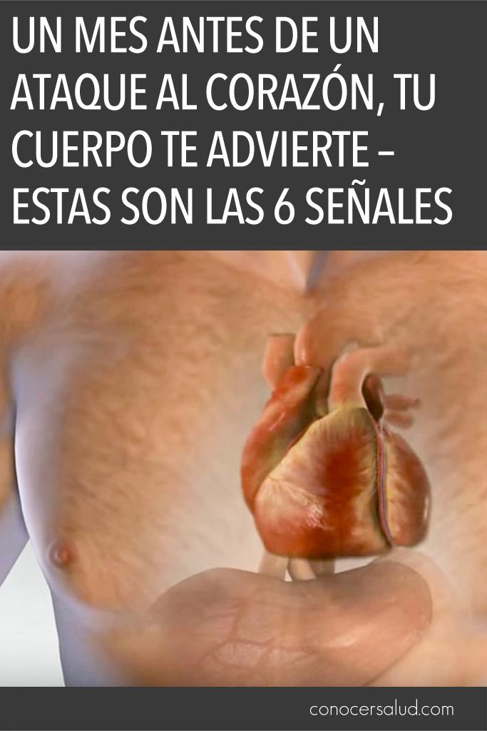Un mes antes de un ataque al corazón, tu cuerpo te advierte - Estas son las 6 señales