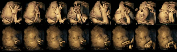 Terribles imágenes en 4D que muestran el efecto del tabaco en el desarrollo del bebé