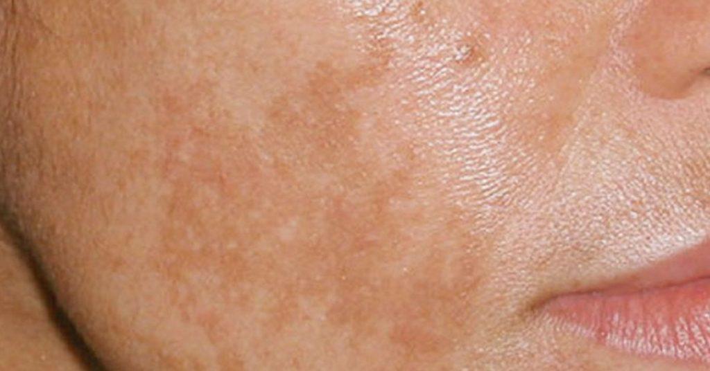 5 remedios caseros para eliminar esas manchas indeseadas de la piel - Sacar manchas de oxido del piso ...