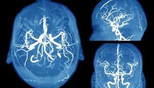 Cómo detectar un aneurisma cerebral antes de que sea demasiado tarde