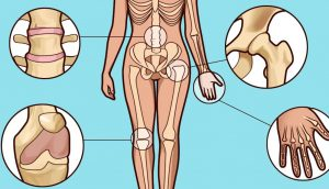 ¿Sospecha que tiene artritis? Cómo detectar los primeros síntomas