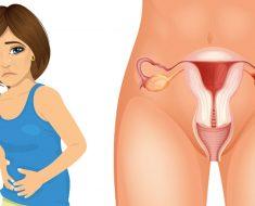 4 primeros síntomas de cáncer de ovario que cada mujer necesita saber