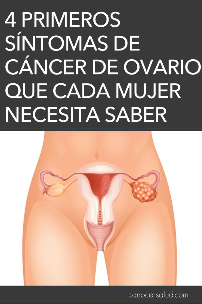 4 Primeros Sintomas De Cancer De Ovario Que Cada Mujer Necesita