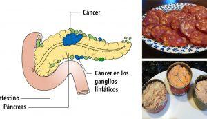 11 Alimentos cancerígenos que nunca debes poner en tu boca otra vez