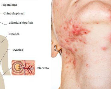 5 Alimentos que destruyen tus hormonas y tu piel