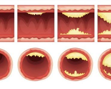 10 alimentos que desatascan las arterias naturalmente y protegen contra el ataque al corazón