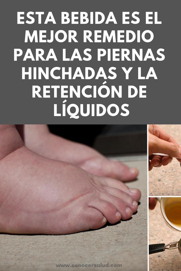 Esta bebida es el mejor remedio para las piernas hinchadas y la retención de líquidos