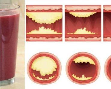 Esta deliciosa bebida desatasca las arterias y previene de enfermedades cardíacas