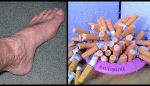 Esto es lo que le sucede a su cuerpo 20 minutos después de dejar de fumar