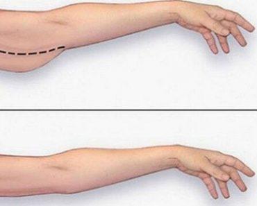 Los mejores ejercicios para cualquiera que quiera perder grasa de los brazos en casa