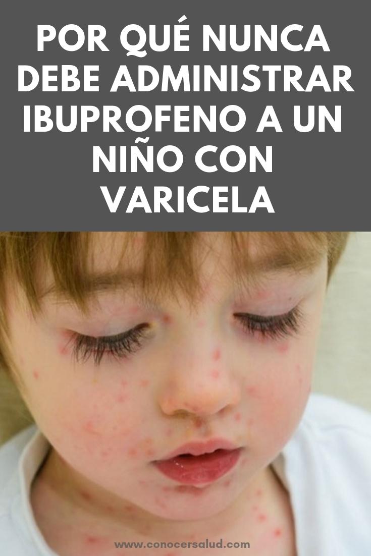 Por qué nunca debe administrar ibuprofeno a un niño con varicela