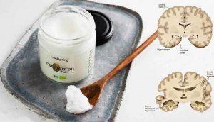 5 cosas que puede hacer para protegerse de la enfermedad de Alzheimer
