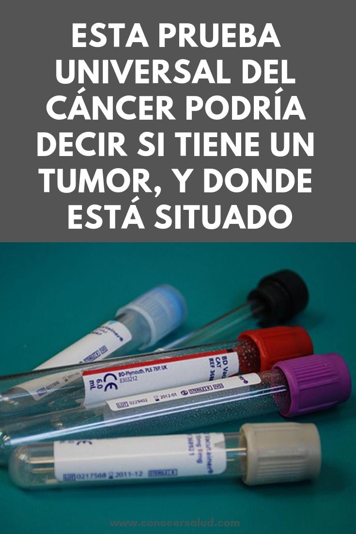 Esta prueba universal del cáncer podría decir si tiene un tumor, y donde está situado