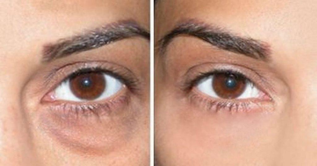 La crema buena de las arrugas alrededor de los ojos las revocaciones después de 25