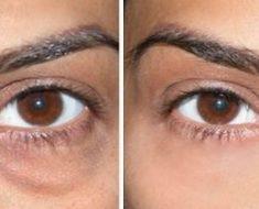 Cómo deshacerse de las obstinadas bolsas de los ojos con aceite esencial y aloe vera
