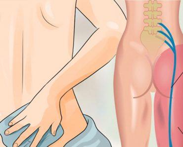 8 remedios para el dolor de ciática que necesita probar antes de poner otro analgésico en su boca
