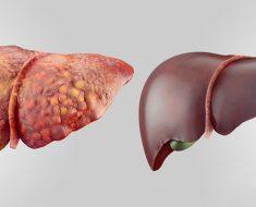 6 alimentos fundamentales que desintoxican su hígado rápidamente