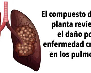 El compuesto de esta planta revierte el daño por enfermedad crónica en los pulmones, de acuerdo con una investigación