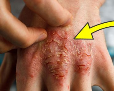 8 causas fundamentales del eczema que los doctores nunca tratan