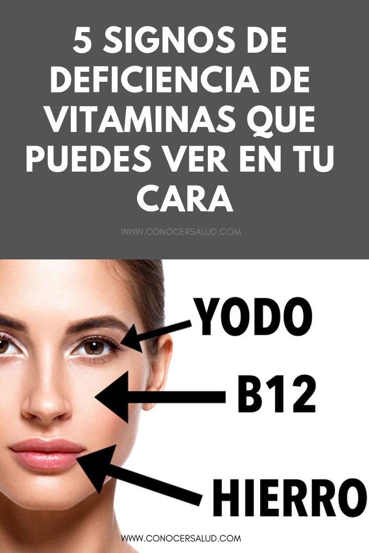 5 signos de deficiencia de vitaminas que puedes ver en tu cara