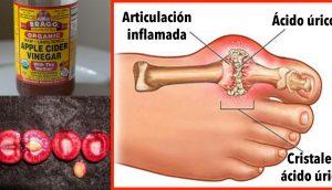Cómo eliminar rápidamente la cristalización de ácido úrico de su cuerpo para prevenir la gota y el dolor en las articulaciones