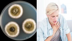 La enfermedad del moho está en todas partes: así es y estas son las 11 señales que tiene