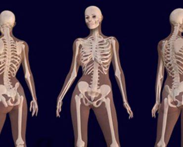 Científicos descubren que la marihuana ayuda a curar los huesos rotos e incluso los hace más fuertes