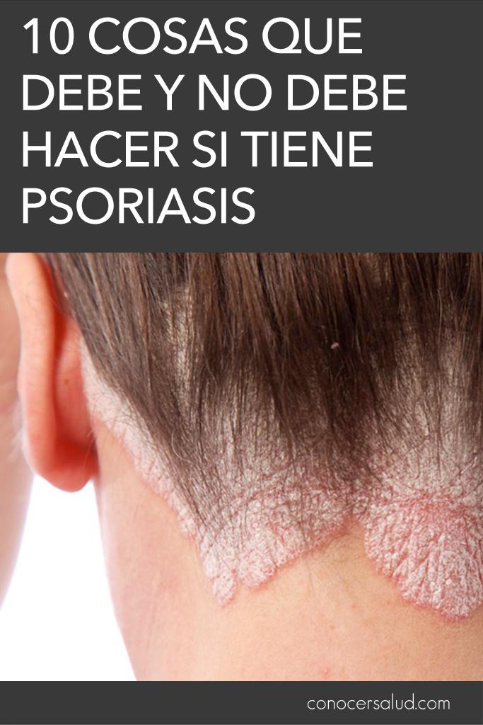 10 cosas que debe y NO debe hacer si tiene psoriasis
