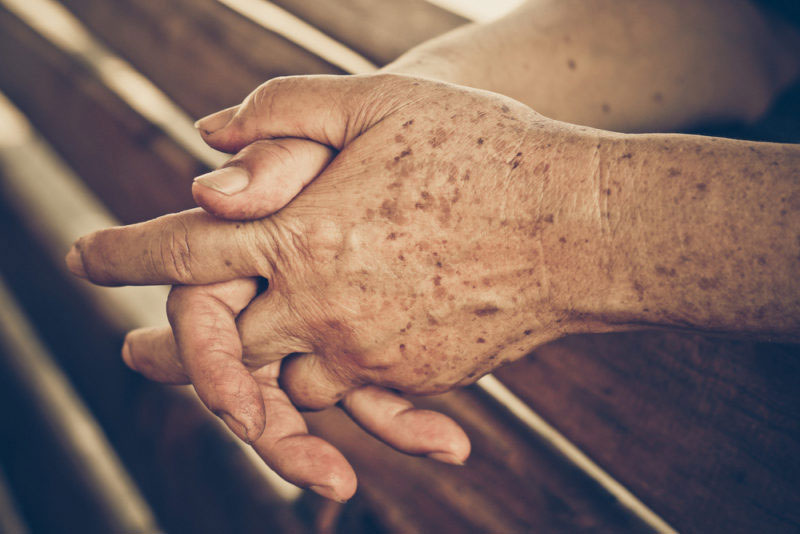 Manchas de la edad: Qué son y cómo eliminarlas de forma natural