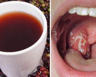10 Remedios que acaban con las infecciones de garganta por estreptococos casi al instante