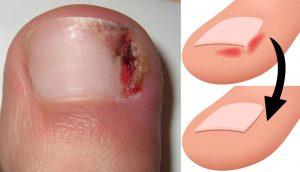 Tratamiento casero para calmar, curar y prevenir las uñas encarnadas
