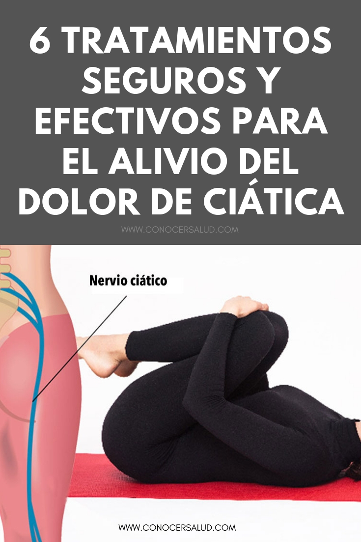 6 Tratamientos seguros y efectivos para el alivio del dolor de ciática
