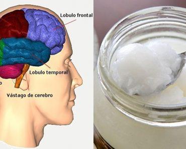 Los pacientes de Alzheimer tienen mejoras cerebrales casi inmediatas después de tomar aceite de coco