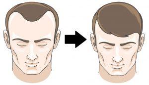 8 alimentos que detener la pérdida de cabello y promover su crecimiento al instante