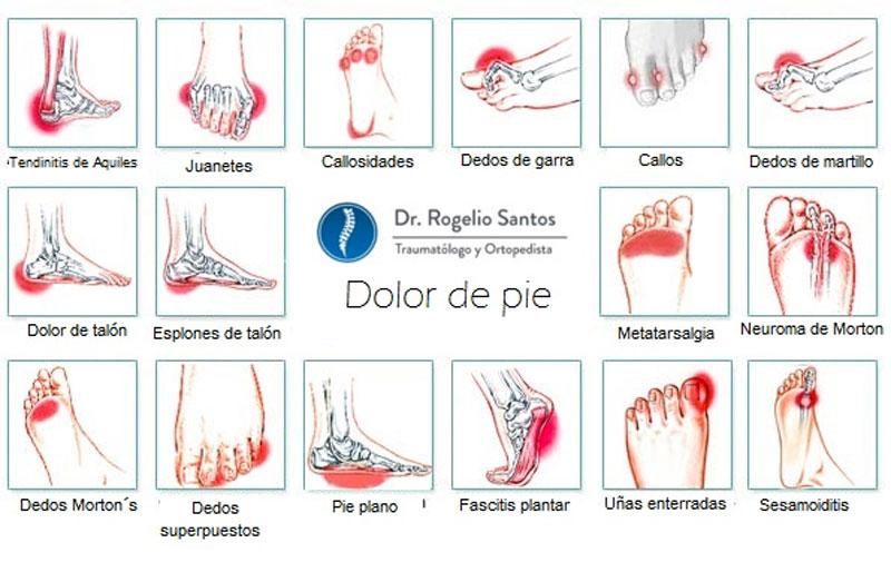 6 ejercicios para aliviar todo tipo de dolor de pies